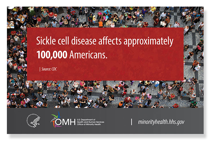 Sickle cell disease affects approximately 100,000 Americans. Source CDC - HHS & OMH Logo - minorityhealth.hhs.gov